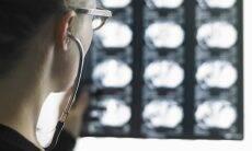 Pesquisadores brasileiros identificam células cerebrais mais vulneráveis ao Alzheimer