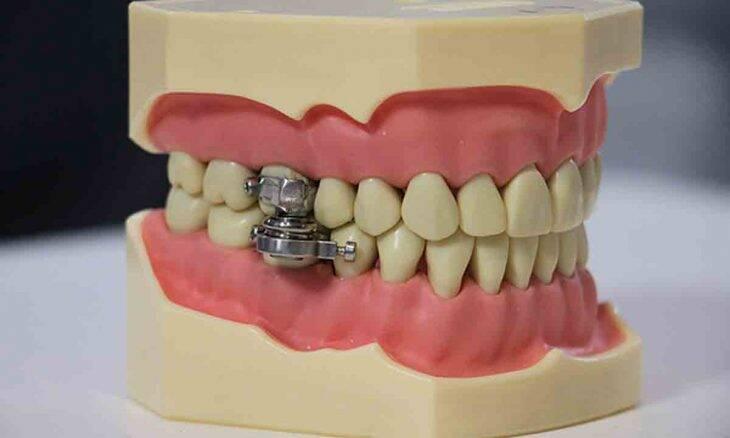 """Cientistas desenvolvem """"dispositivo para perder peso"""" que trava as mandíbulas das pessoas. Foto: Reprodução Twitter"""